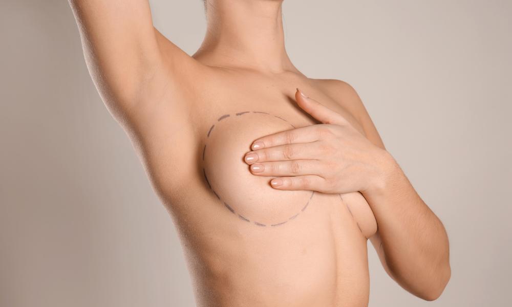 chirurgia-estetica-bari