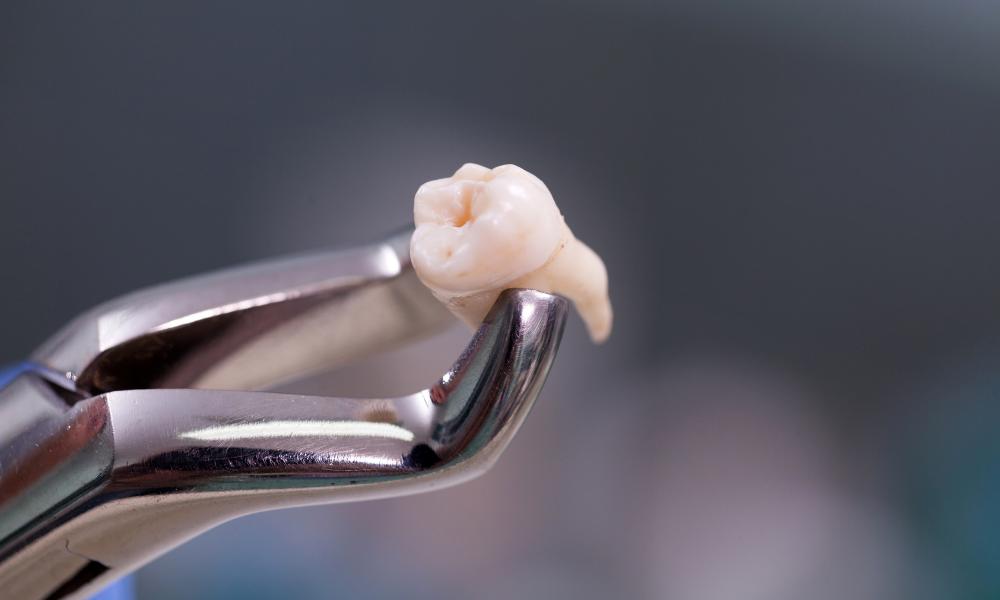 chirurgia-orale-excellence-bari