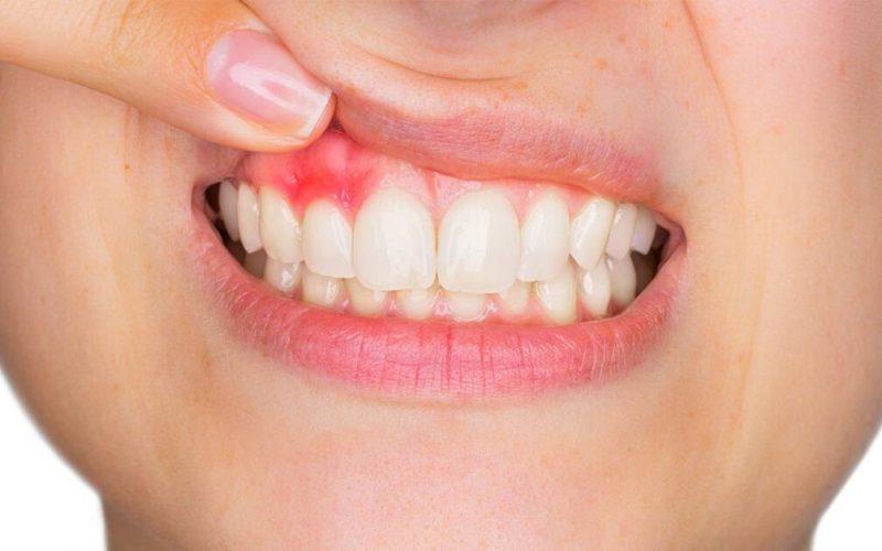 parodontologia-dentista-bari