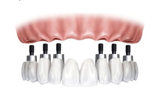 protesi_dentali