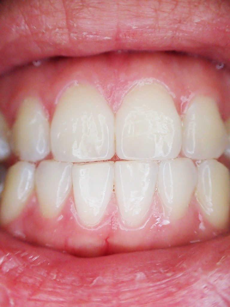 teeth, mouth, dental-887338.jpg